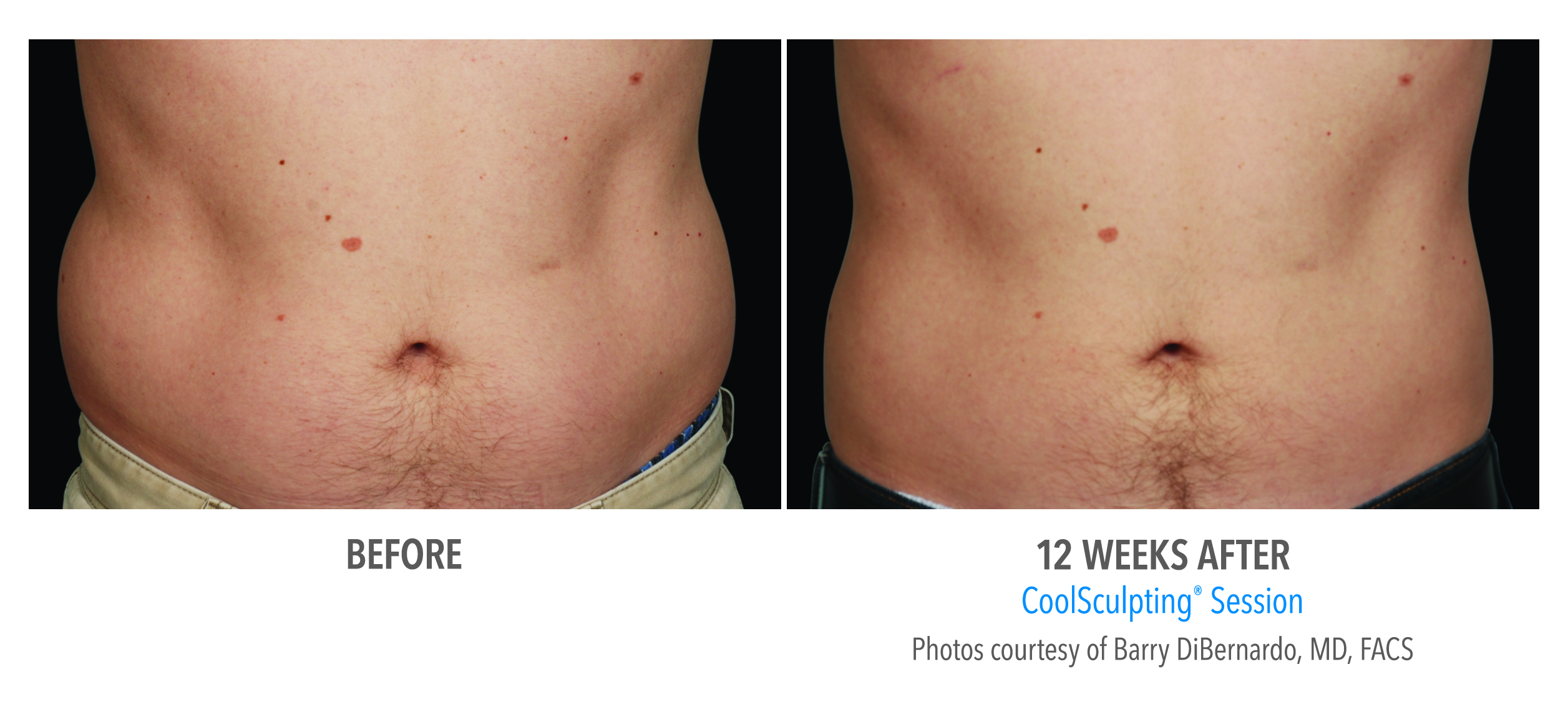love handles reduction before after