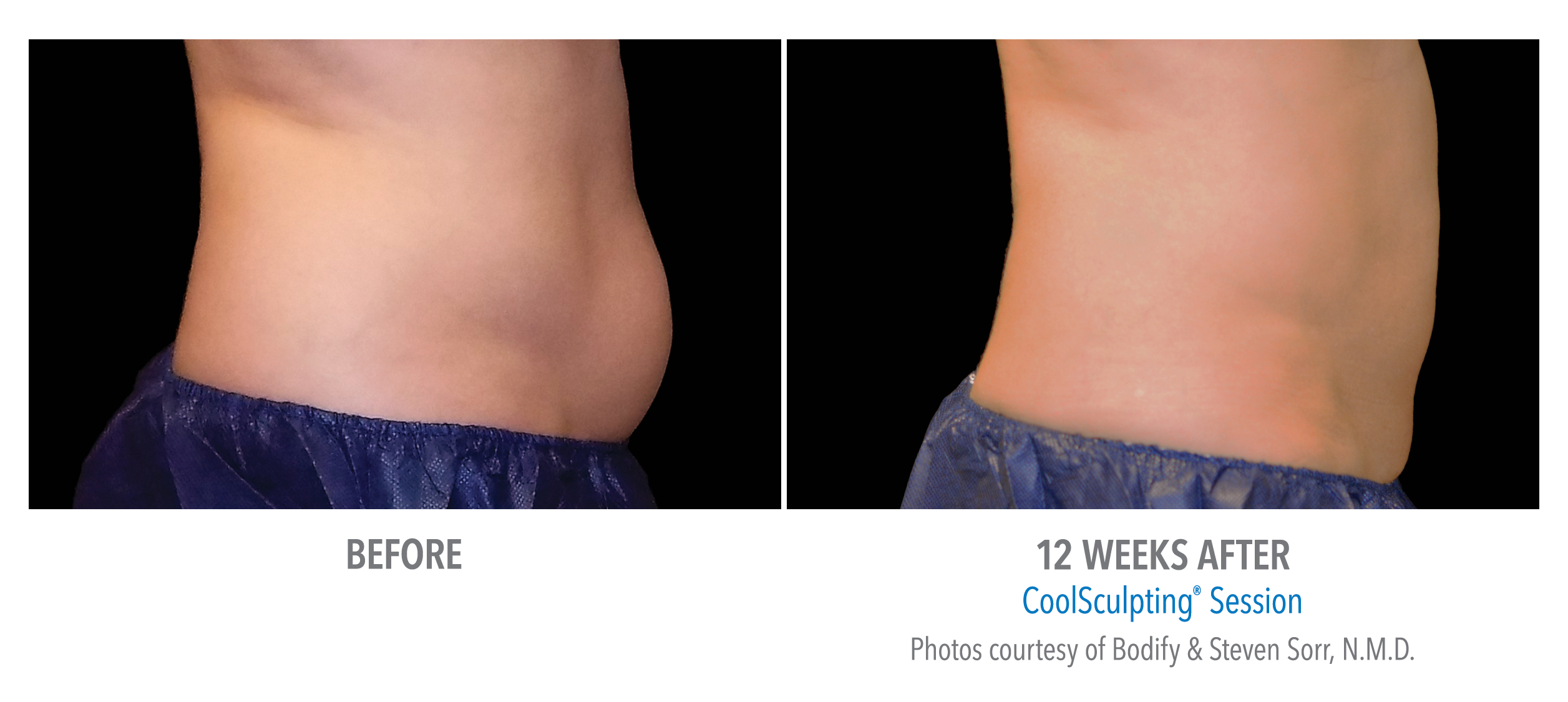 lower ab coolsculpting before after