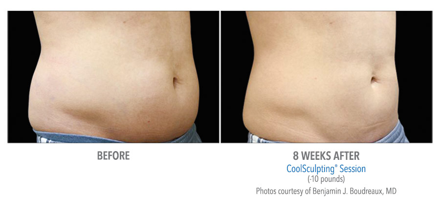 lower abdomen body contouring