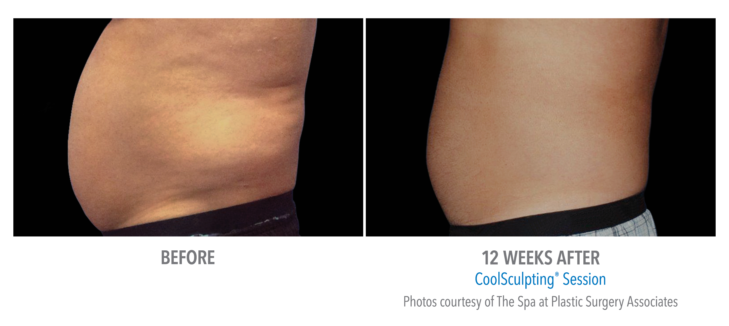lower abdomen contouring before after