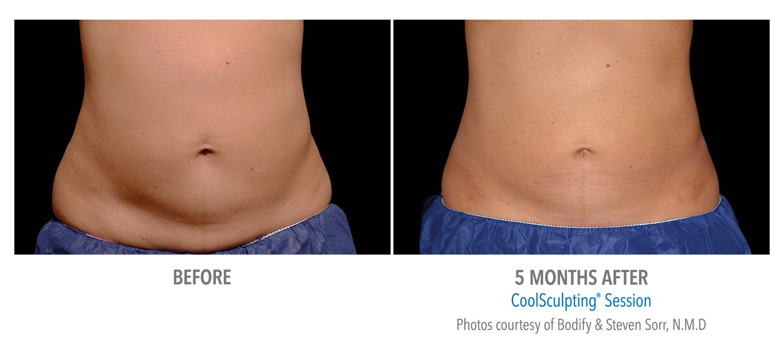 lower abdomen coolsculpting san diego