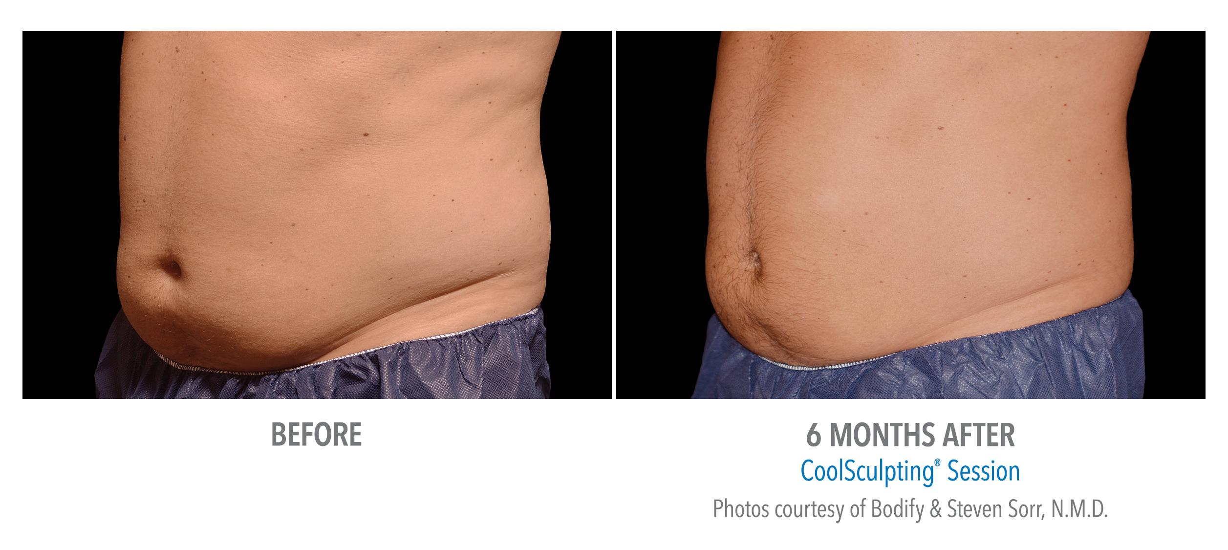 lower abdomen fat reduction