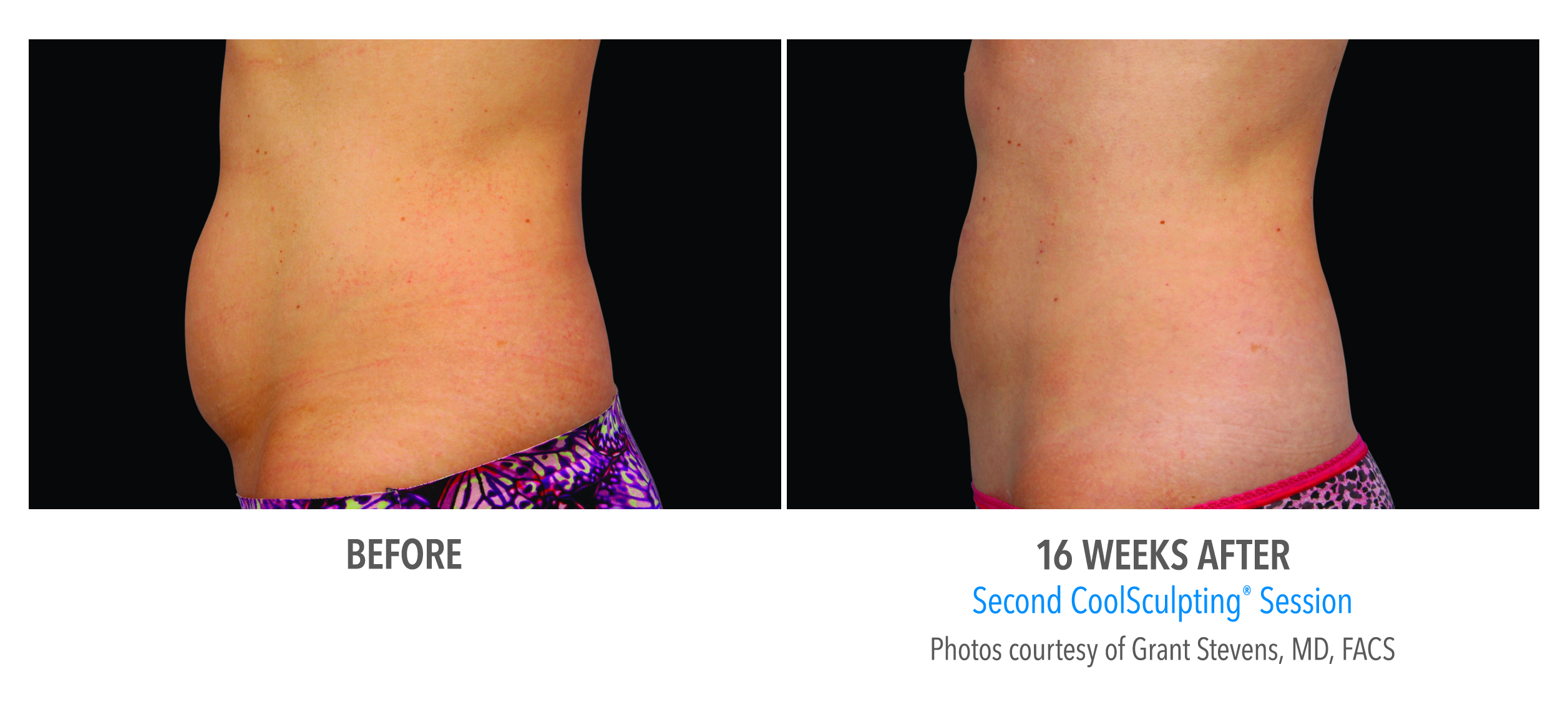 lower abdomen fat reduction before after
