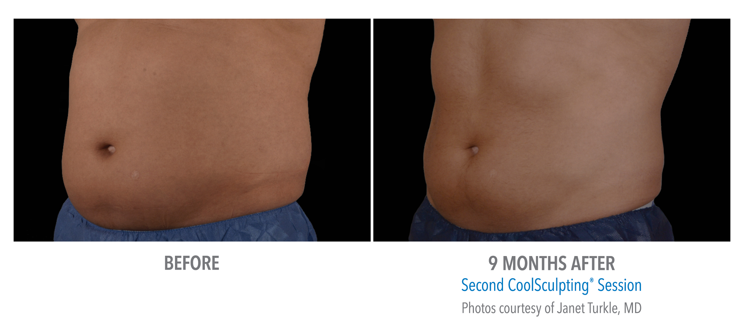 lower abs coolsculpting