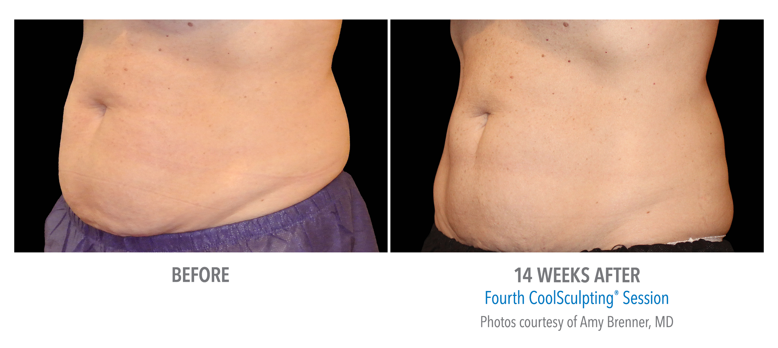 lower stomach coolsculpting