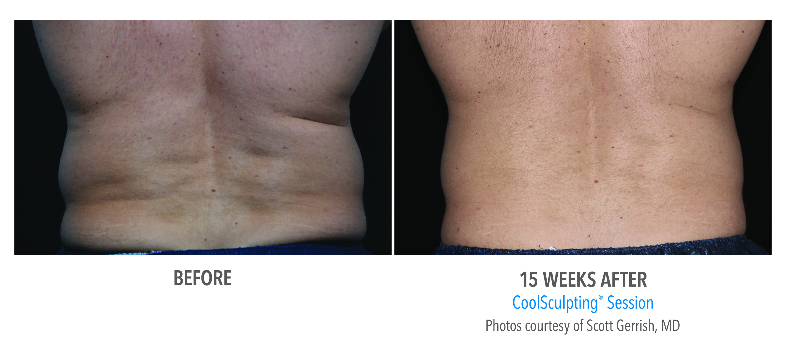 male flanks coolsculpting before after