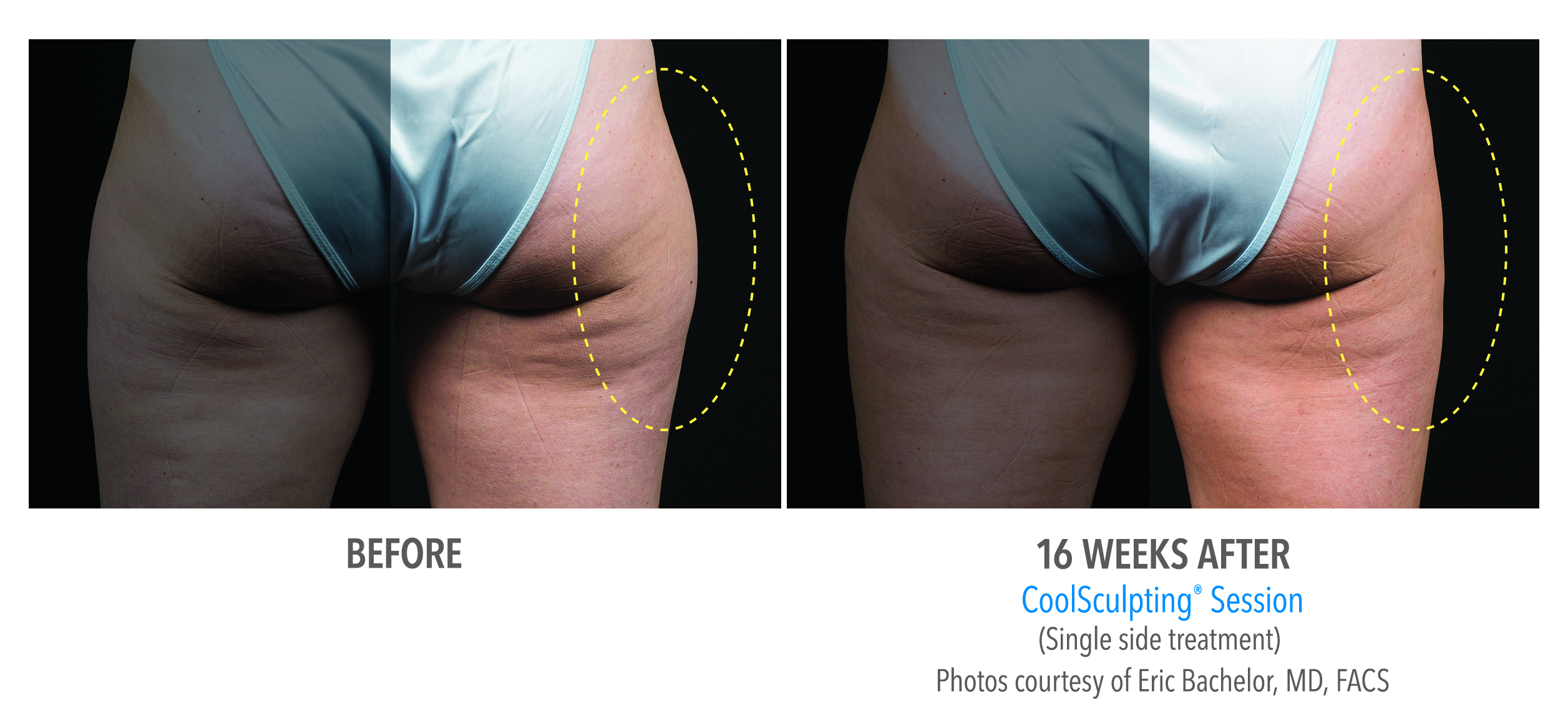 saddlebags coolsculpting before after