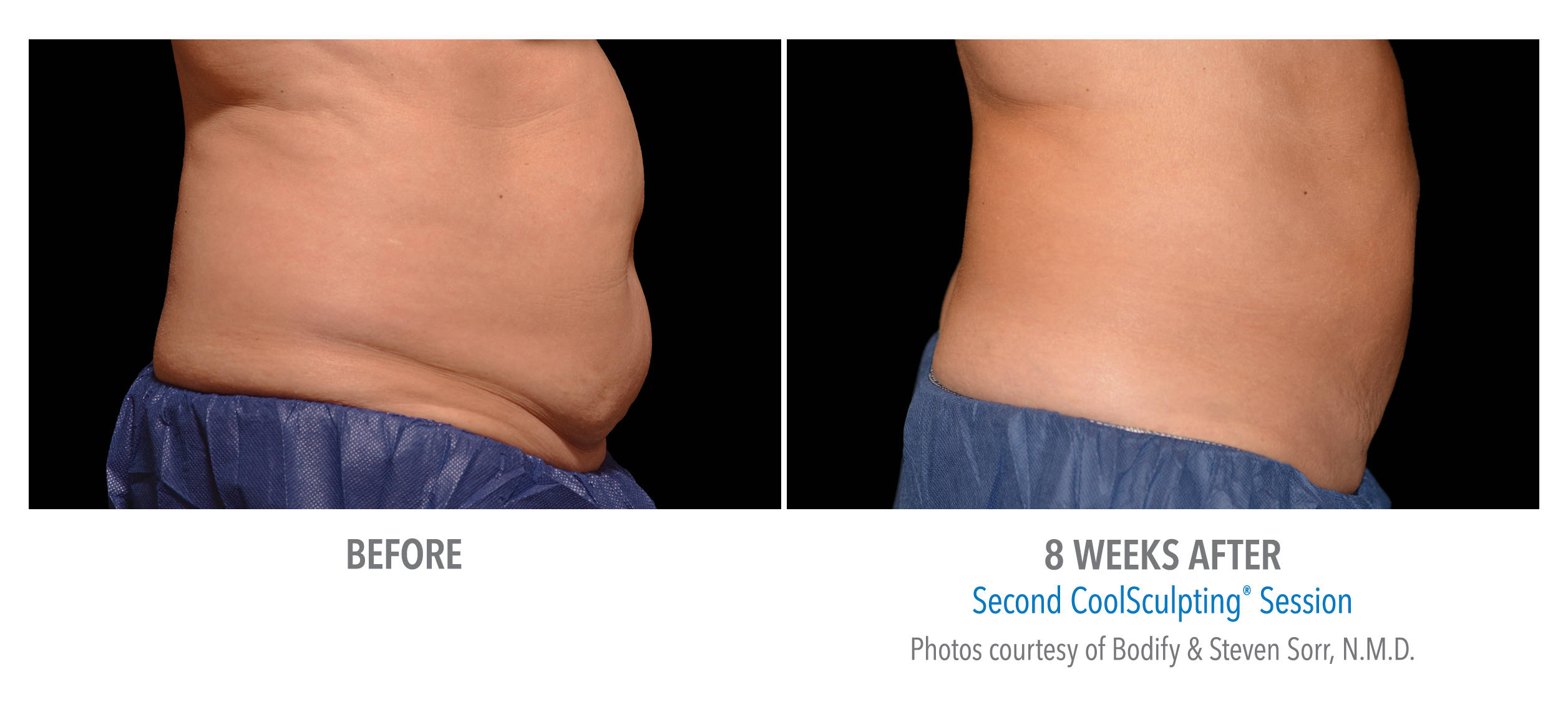 stomach coolsculpting before after