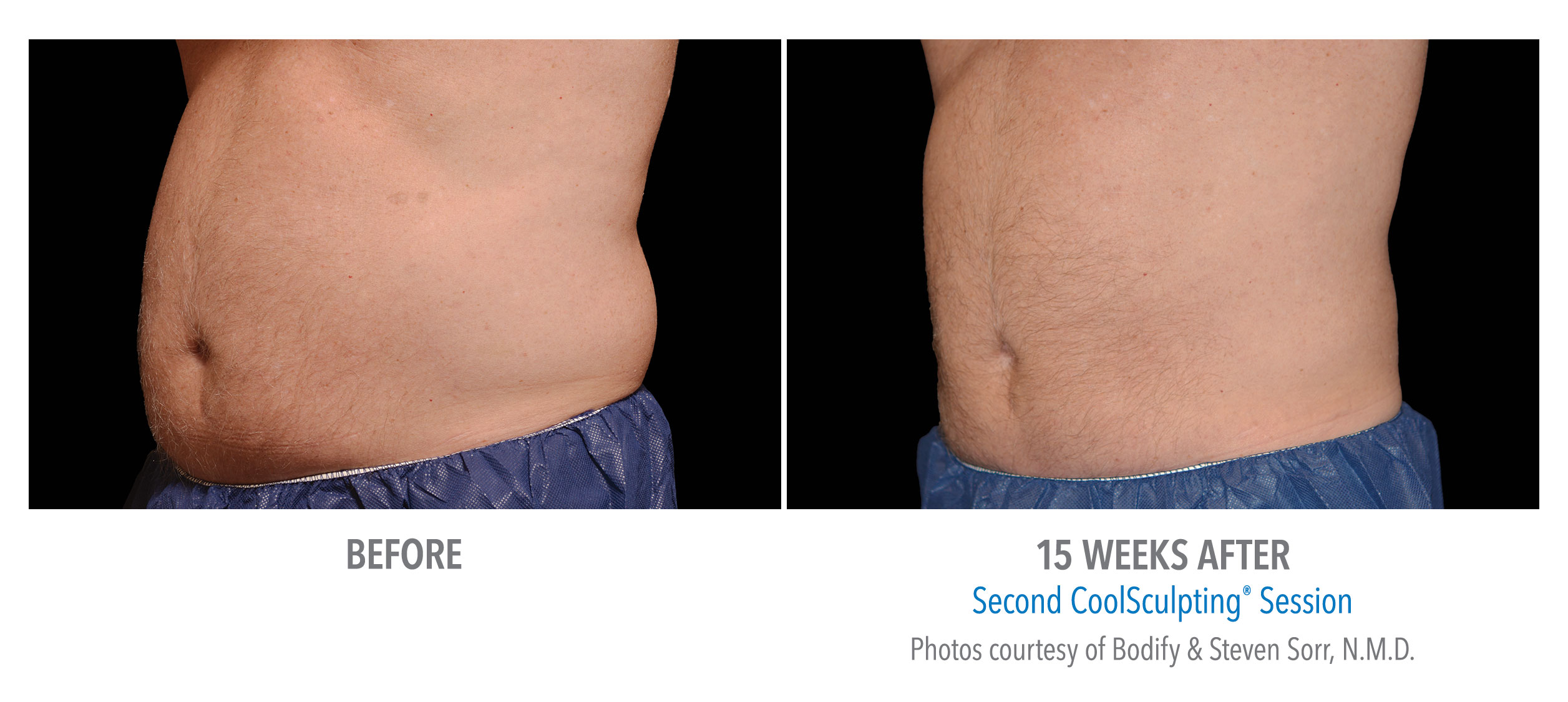 stomach coolsculpting before afters