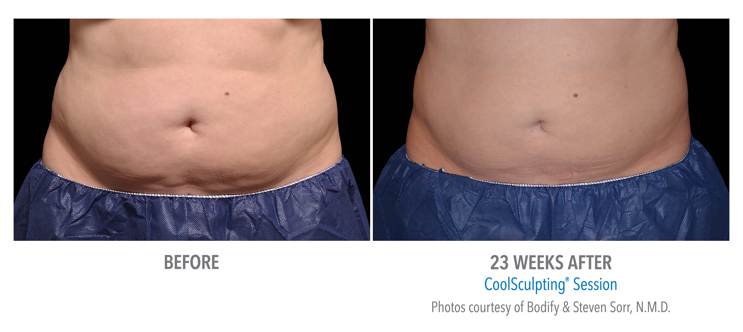 stomach coolsculpting in san diego