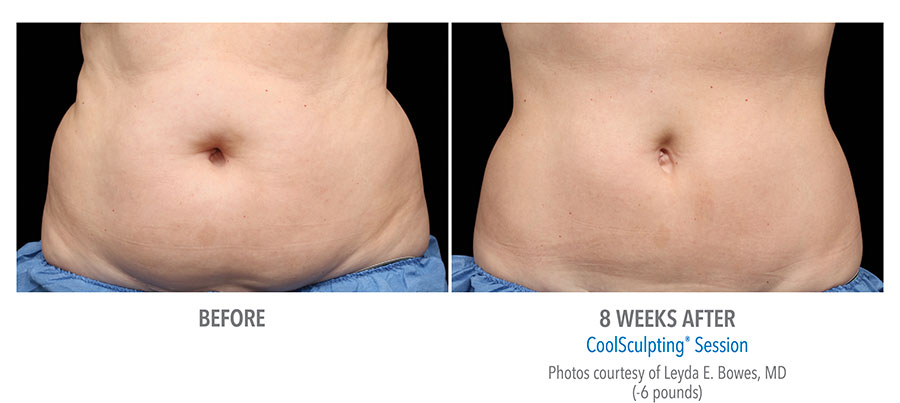 stomach fat reduction coolsculpting