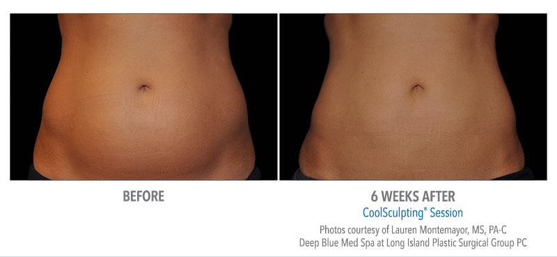 stomach flattening coolsculpting before after