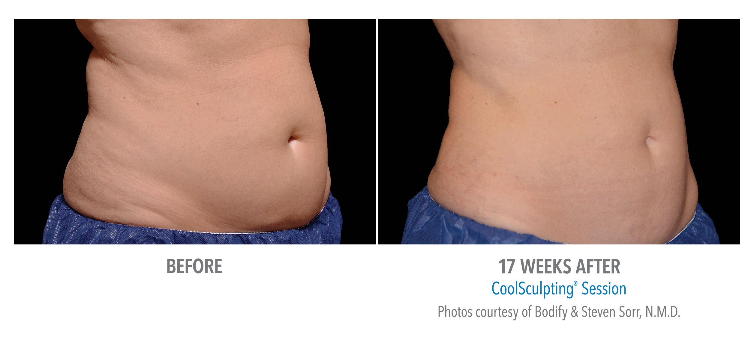 stomach flattening with coolsculpting