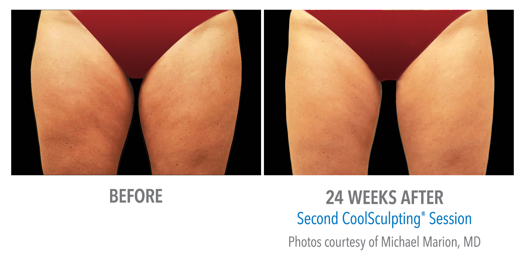 thigh fat coolsculpting before after