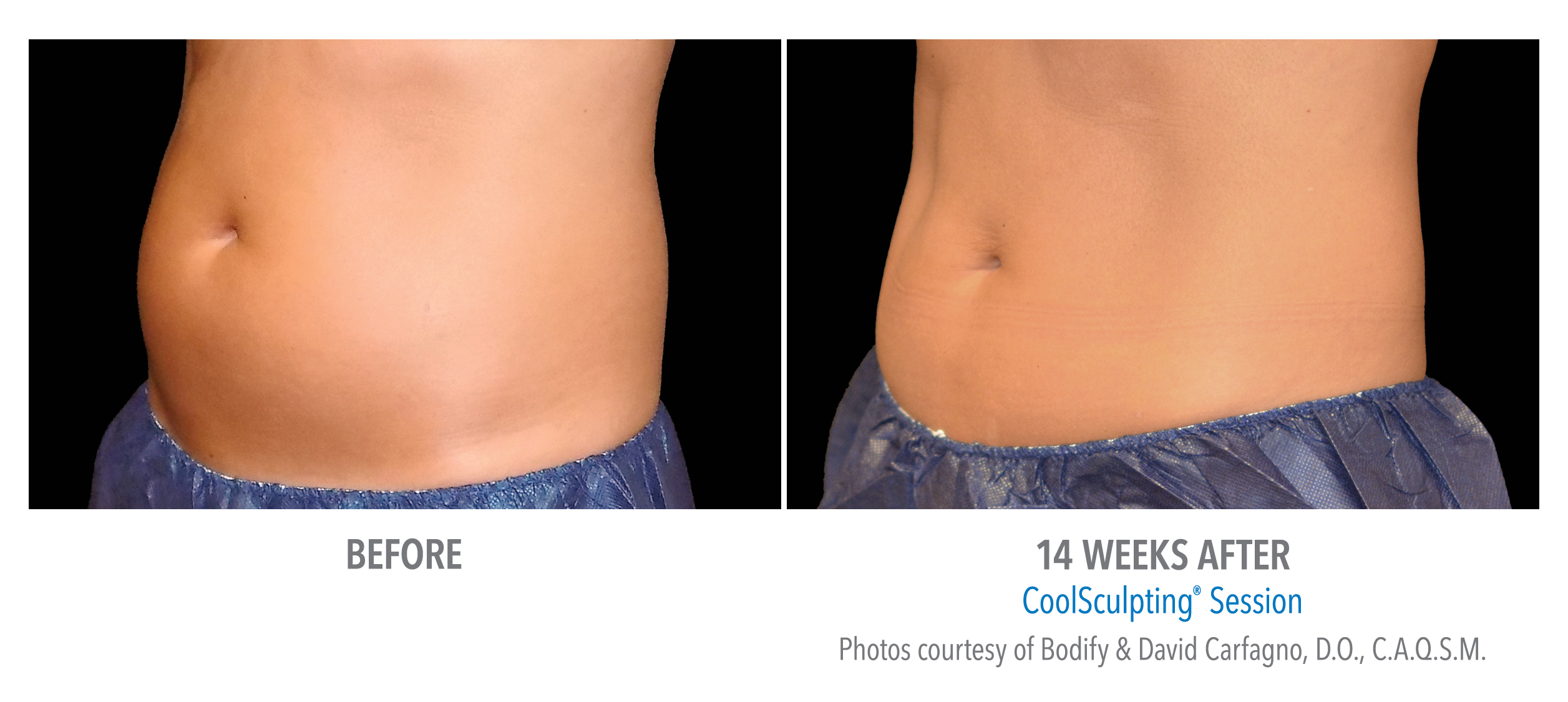 tummy coolsculpting before after