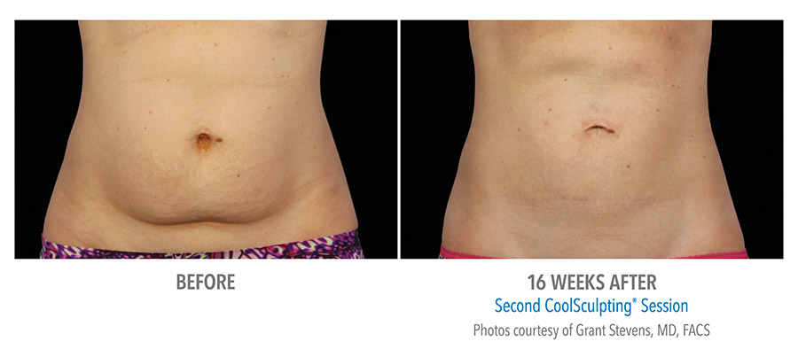 tummy fat reduction coolsculpting