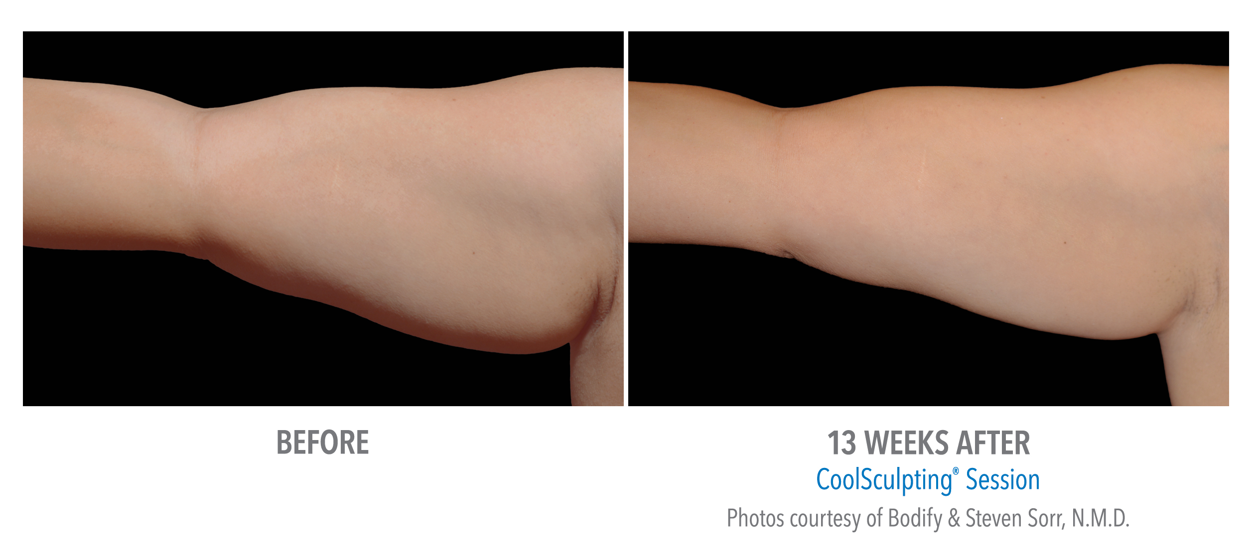 upper arm coolsculpting before after
