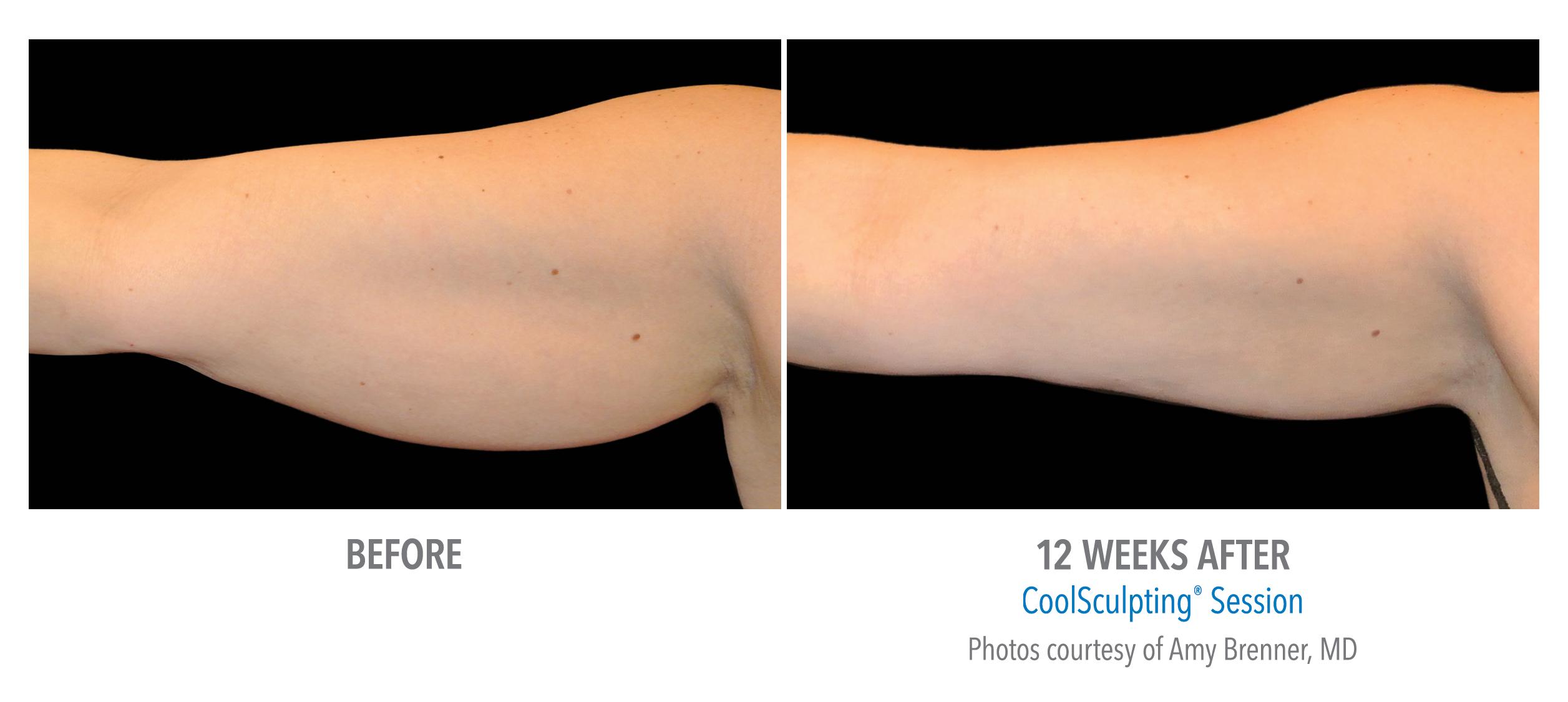 upper arm fat coolsculpting