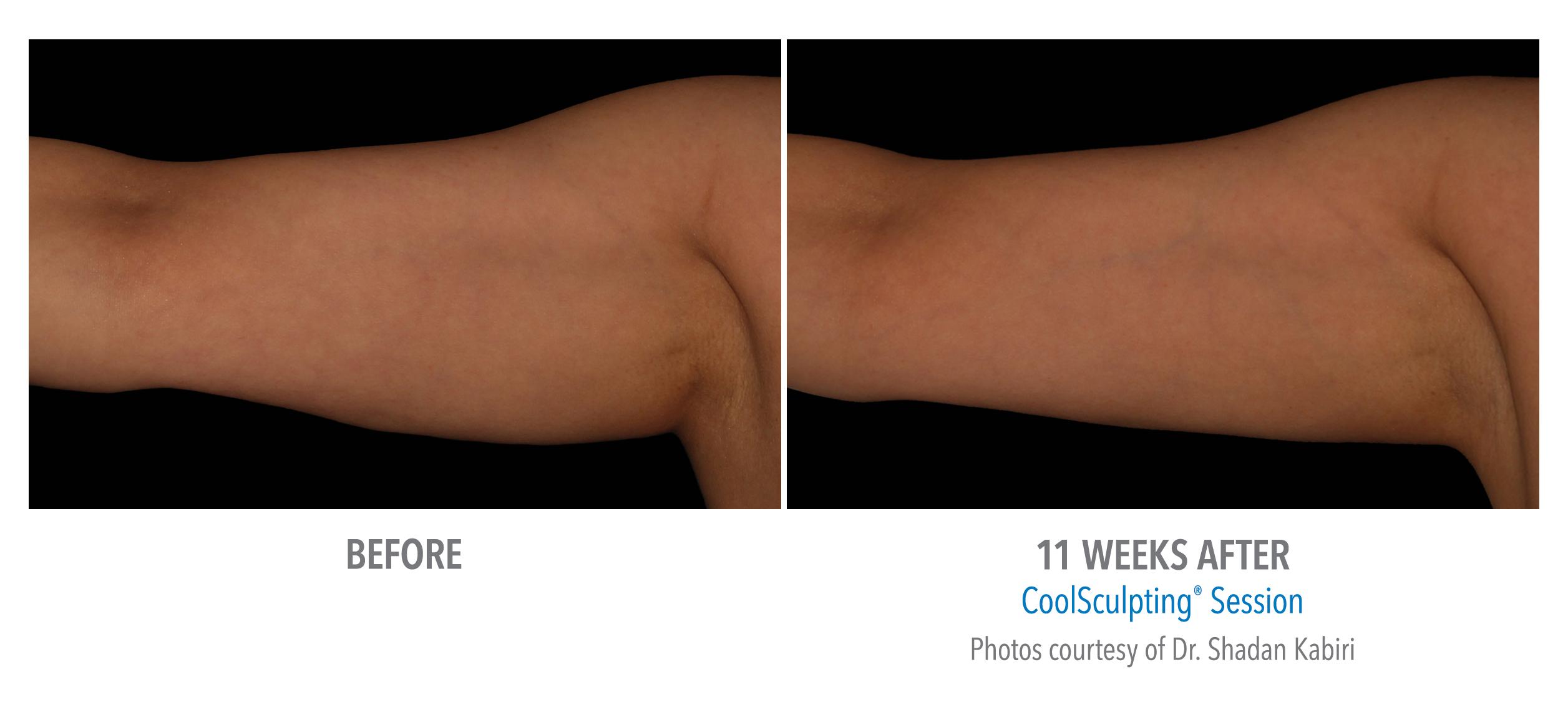 upper arm fat treatment
