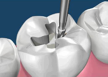 Affordable Tooth Bonding and Filling