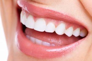 Affordable Dental Bridges