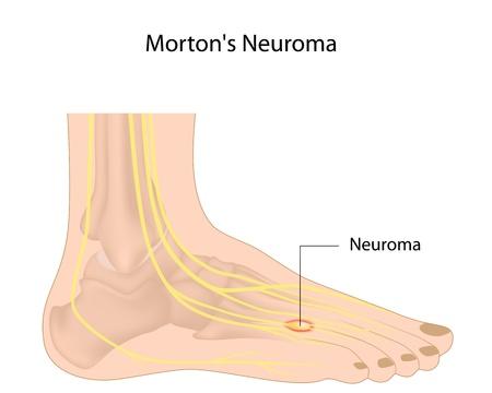 16911785 - morton neuroma
