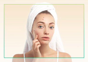 Why does adult acne occur?
