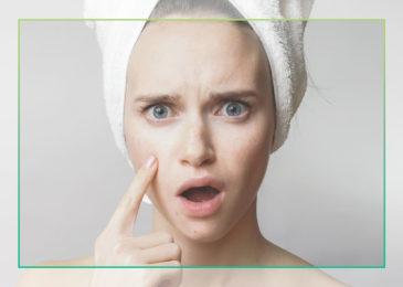Oily Skin: Friend or Foe?