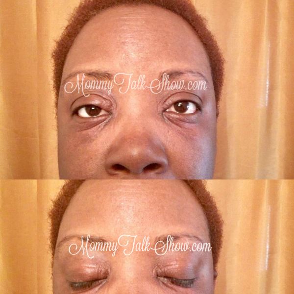 Adult Pink Eye is Crazy Expensive to Treat and Annoying