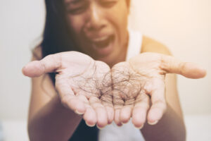 A woman with hair loss problems