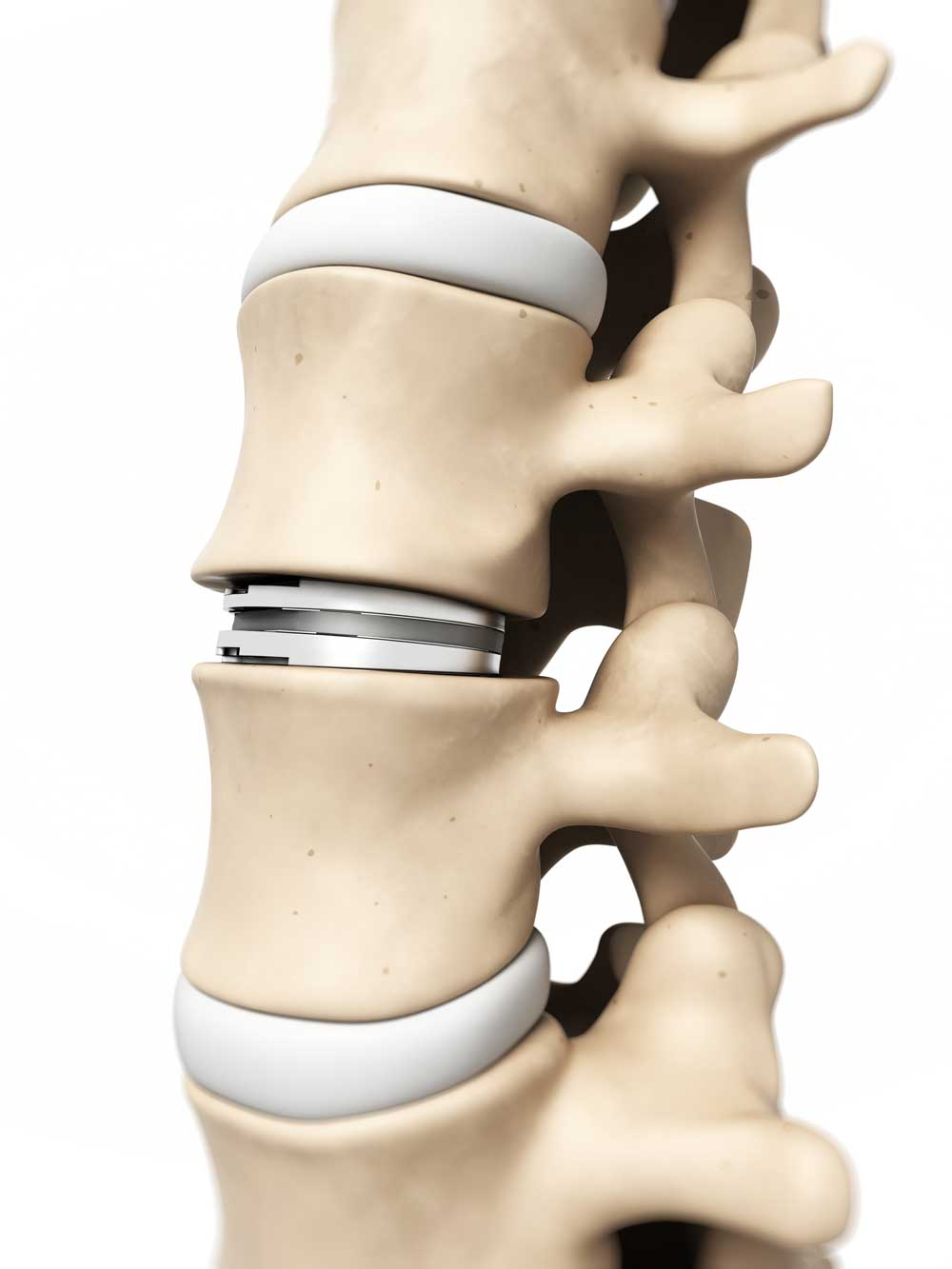 Artificial disc replacement in the neck