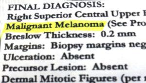 Parkinson's Melanoma risk