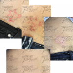 houston laser tattoo removal pictures