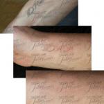 houston tattoo removal pics