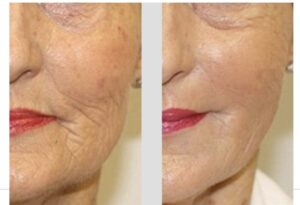prp wrinkle removal