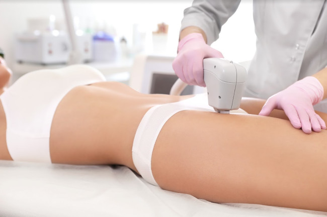 7 Potential Benefits of Laser Hair Removal