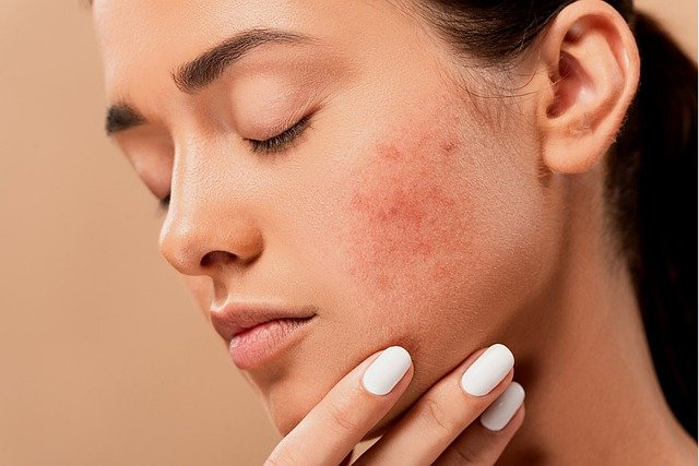 How Diet Helps Manage Adult Acne