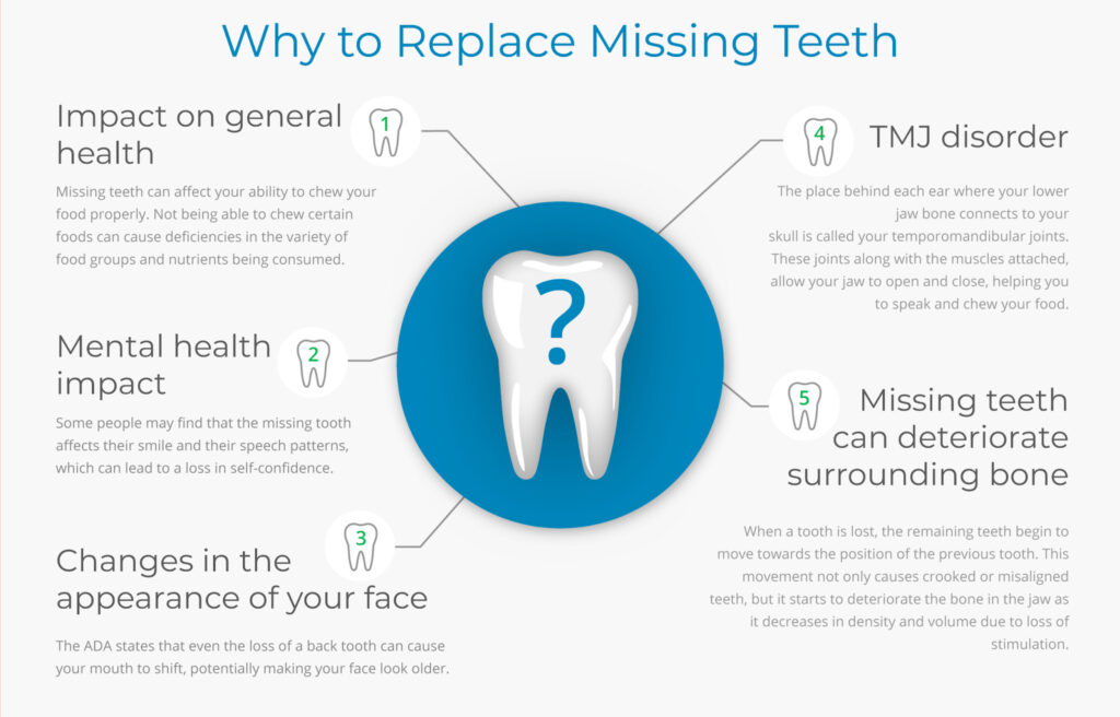 Dental Implants: Cost, Types, and Procedure