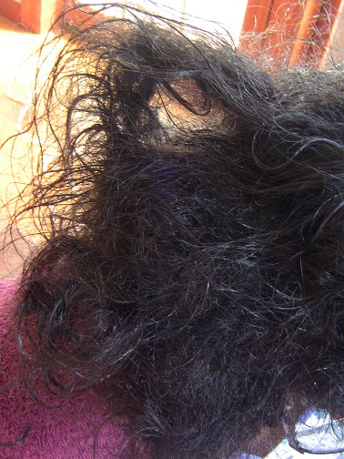 Living with Severely Matted Tangled Hair Is Increasingly Becoming A Health Concern for Many People.