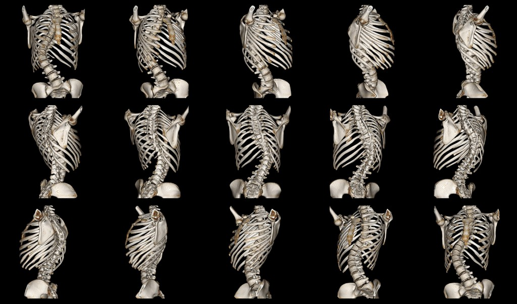 Early Detection of Scoliosis