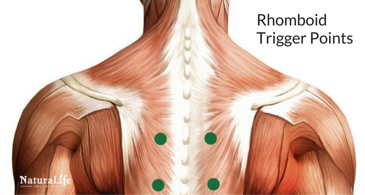 rhomboid trigger point diagram