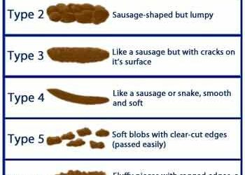 Using the Bristol Stool Scale