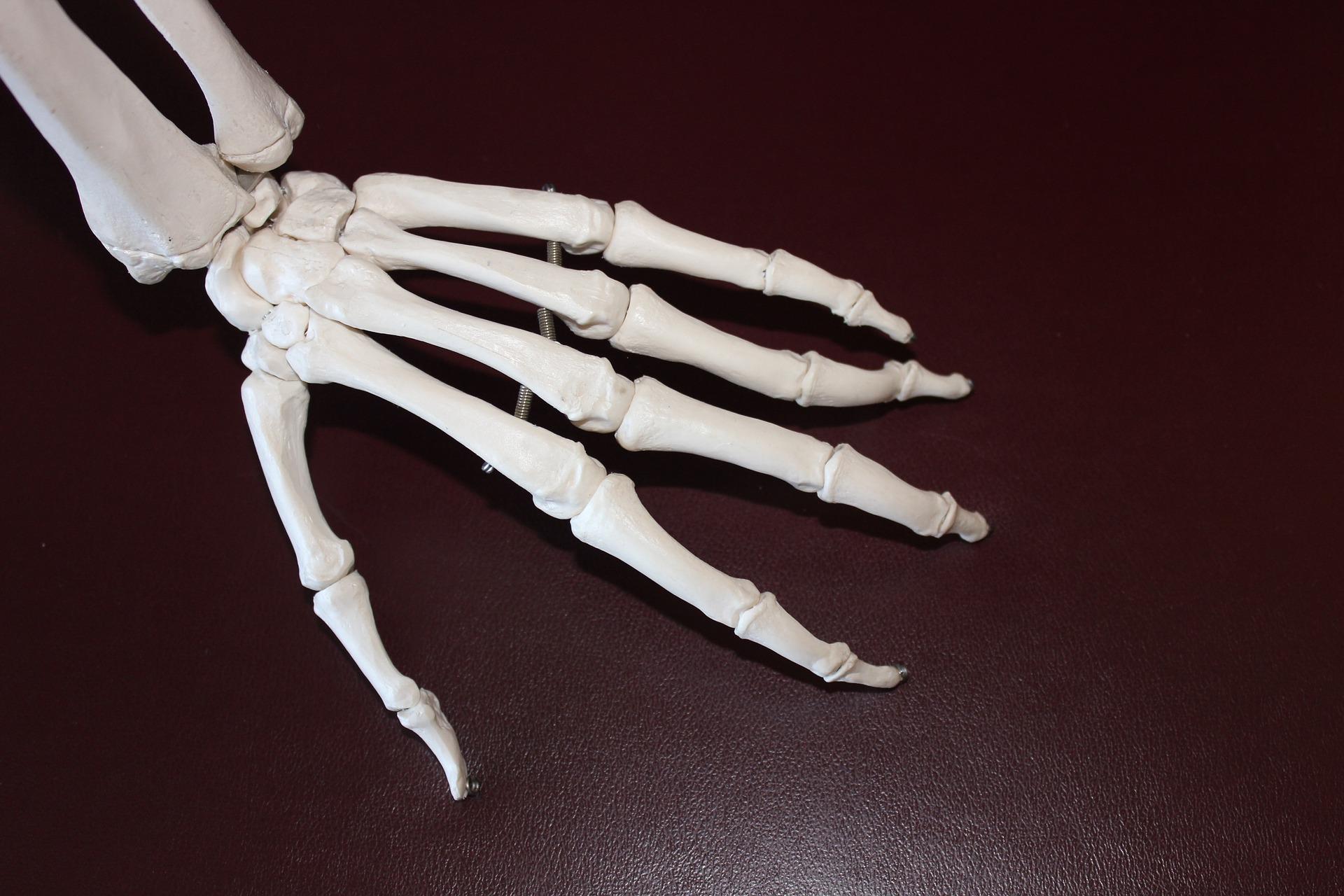 rheumatoid arthritis physical therapy