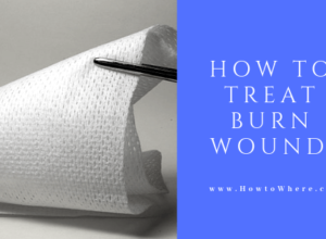 burn injury treatment