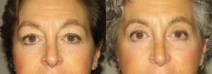 Eyelid Patient 10 | Guyette Facial & Oral Surgery, Scottsdale, AZ