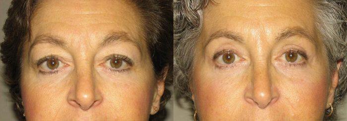 Eyelid Patient 10   Guyette Facial & Oral Surgery, Scottsdale, AZ