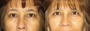 Eyelid Patient 11 | Guyette Facial & Oral Surgery, Scottsdale, AZ