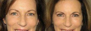 Eyelid Patient 14 | Guyette Facial & Oral Surgery, Scottsdale, AZ
