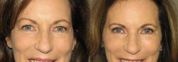 Eyelid Patient 14   Guyette Facial & Oral Surgery, Scottsdale, AZ