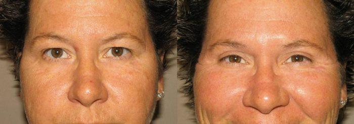 Eyelid Patient 15   Guyette Facial & Oral Surgery, Scottsdale, AZ